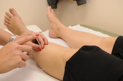 Osteopathic Treatments Medical Acupuncture Brookmans Park Osteos